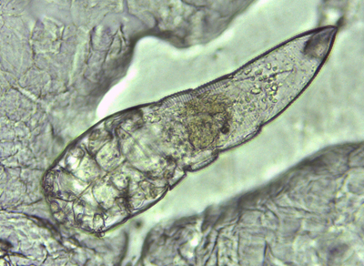 Demodex brevis. Image: Dan Fergus and Megan Thoemmes. Click to enlarge.
