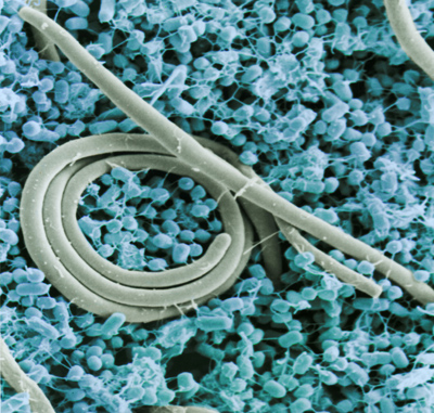 Salmonella enteritidis. Image credit: U.S. Department of Agriculture. Obtained via Wikimedia Commons. Click for more information.