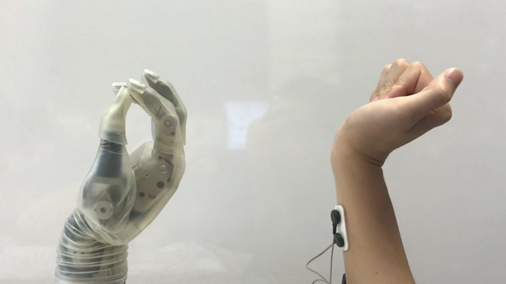 Prosthetic hand mimics real hand movement