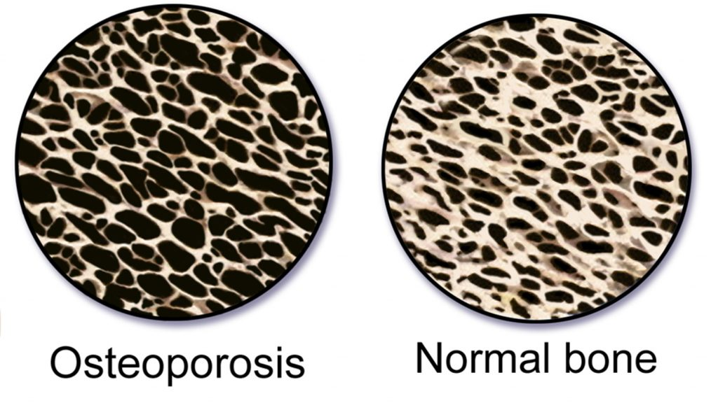 graphic of bone with osteoporosis compared to normal bone