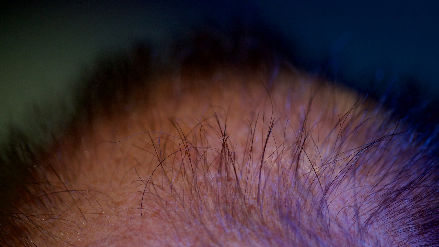 the top of a man's head that is losing its hair