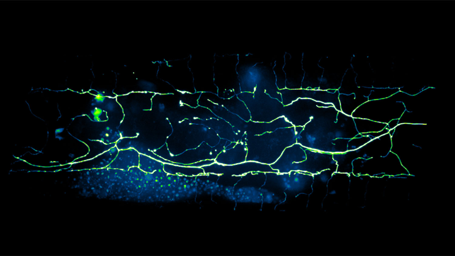 neon map of a neuron in C. elegans a