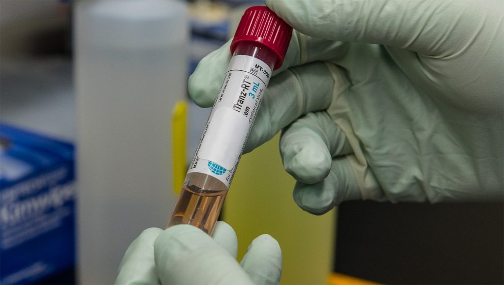 A test tube containing a patient's sample to be tested for the presence of SARS-CoV-2, the virus that causes COVID-19.