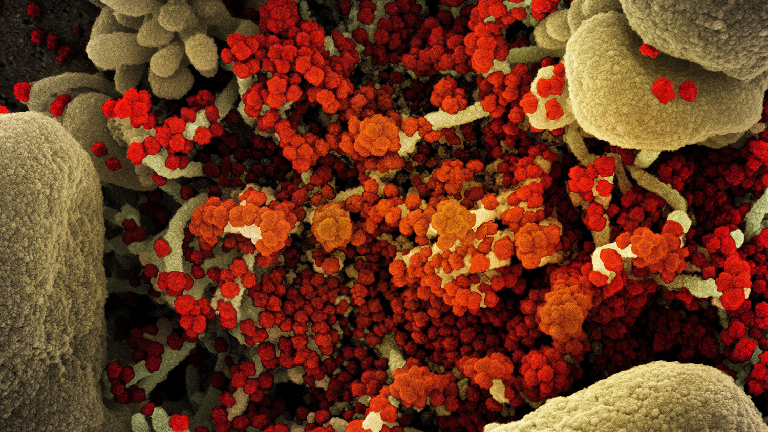 Colorized scanning electron micrograph of an apoptotic cell (tan) heavily infected with SARS-CoV-2 virus particles (orange).