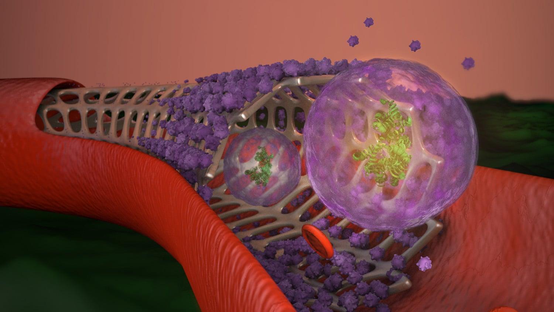 stent in blood vessel